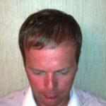 7 Monate nach einer Haarverpflanzung im Bereich der Geheimratsecken
