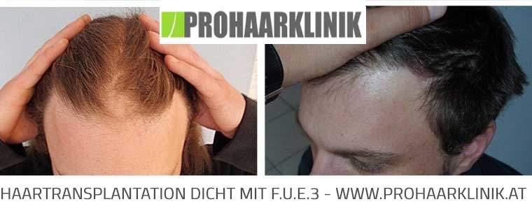 FUE Haartransplantation Bilder