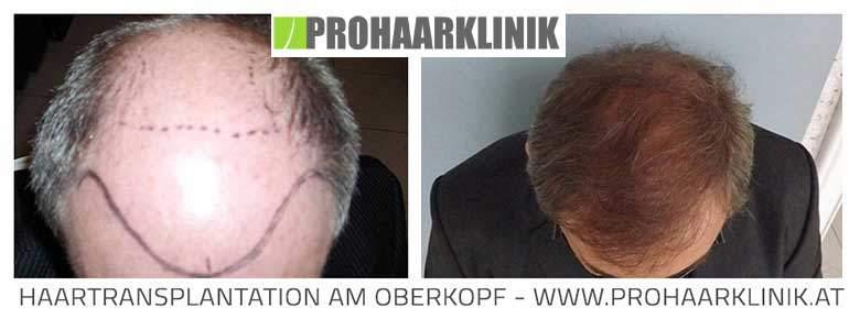 FUE Haartransplantation Aktion