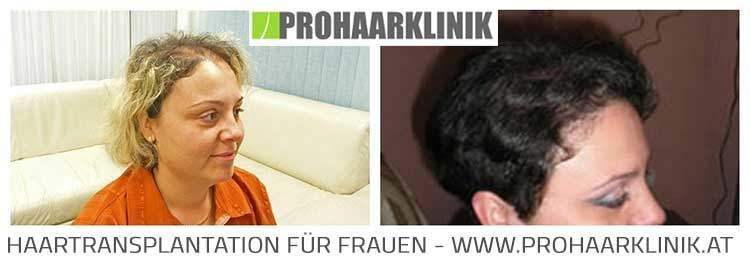 Haartransplantation für Frauen - Fotos