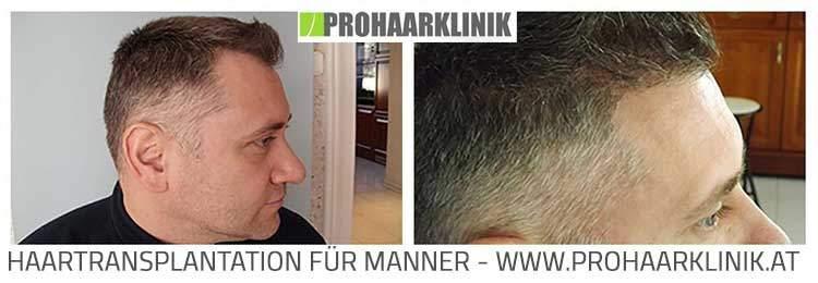 Haartransplantation, Haarverpflanzung Behandlungsablauf  Haartransplantation Erfahrungsberichte fue haartransplantation vorher naccher medium fotos ergebnisse balazs 2
