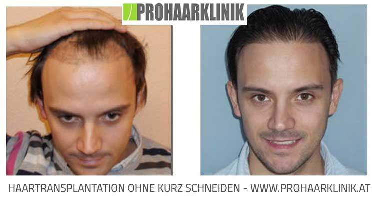 Kostenrechner Haartransplantation
