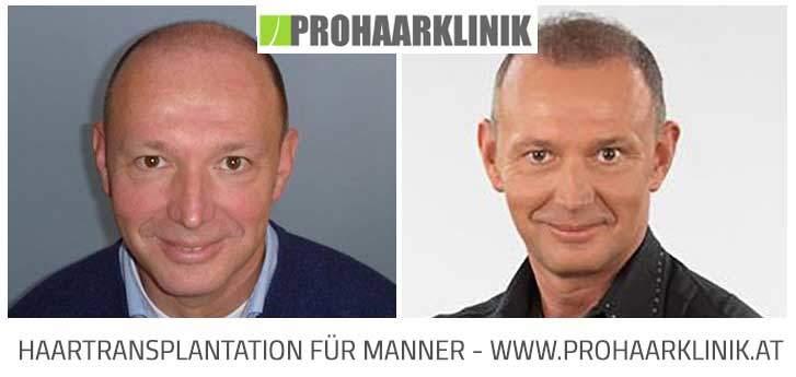 FUE Haartransplantation für Manner