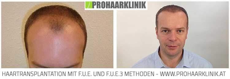 FUE Haartransplantation St. Pölten