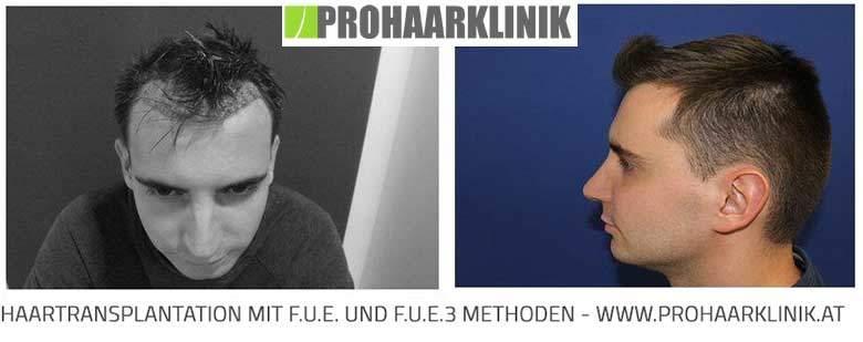 Vergleich zwischen FUE- und FUE3-Methode