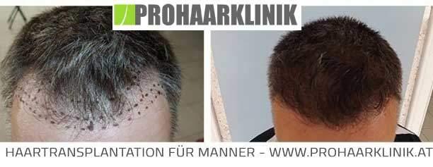 Haartransplantation Behandlungsablauf  Haartransplantation Erfahrungsberichte fue haarverpflanzung vorher nachher medium fotos ergebnisse balazs